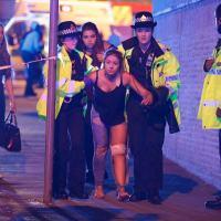 Vítima do atentado socorrida pela Polícia de Manchester.